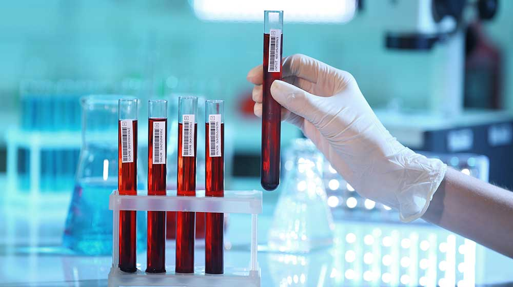 Scientist-holding-test-tube-with-blood-in-lab-