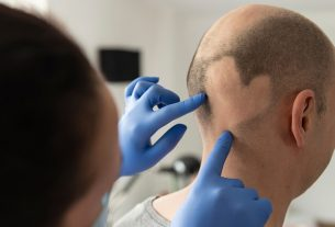 Man with alopecia areata on head_SS_Feature