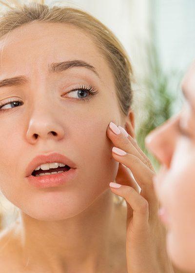 A caucasian woman stresses of skin problem, dry skin, dehydrated skin